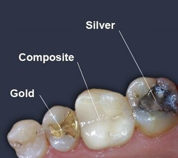 Types of Fillings
